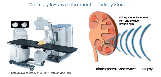 Minimally Invasive Treatment of Kidney Stones